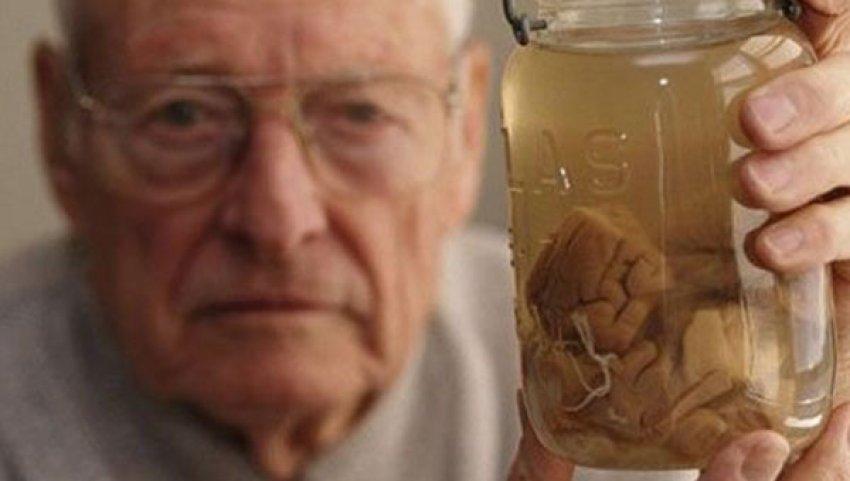 Einstein'in beyni müzede sergileniyor