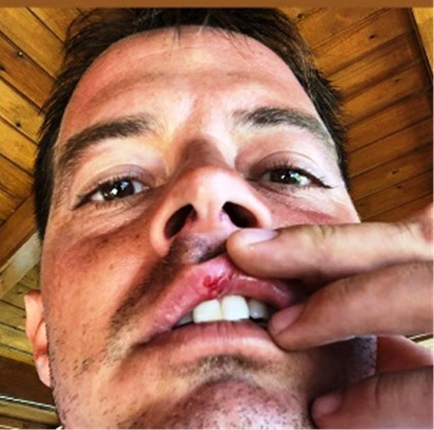 Alp Kırşan motosikletiyle kaza yaptı