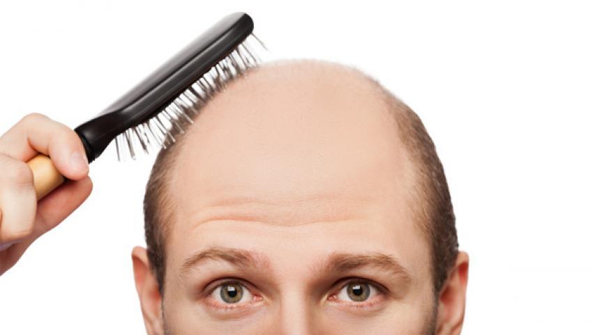 Saç ektirecekler bu habere dikkat