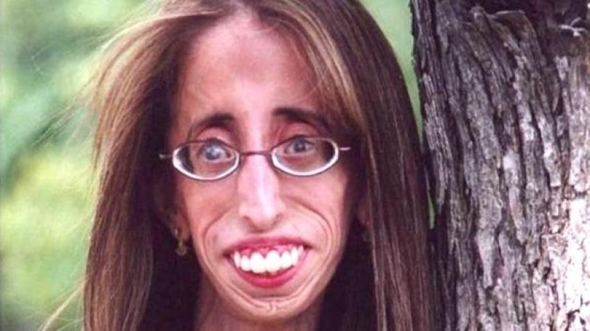 Dünyanın en çirkin kadının son hali herkesi şaşırttı