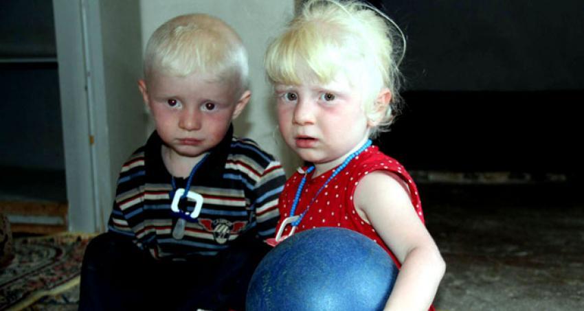 Suriyeli ikizler aydınlığı bekliyor