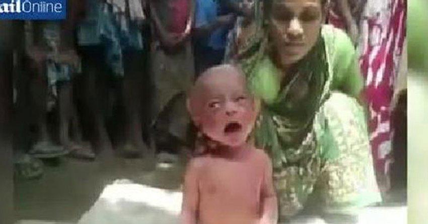 Bebeğin ateşini düşürmek için akıl almaz yöntem!