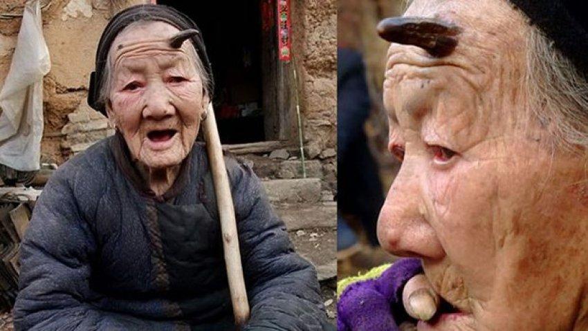 101 yaşında hayatının şokunu yaşadı