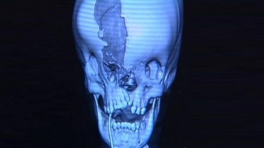 Böyle doğdu ve 3 yıl sonra ameliyatla yüzü düzeltildi