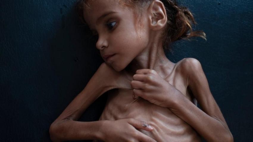 Yemen için tek yürek !