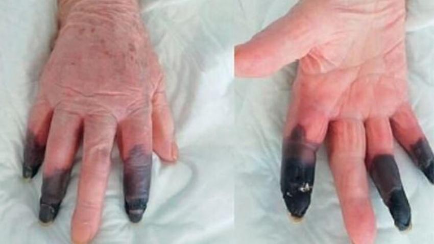Virüse yakalandı kangren olan parmaklarını kaybetti!