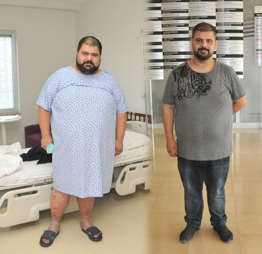 6 ayda 63 kilo verdi