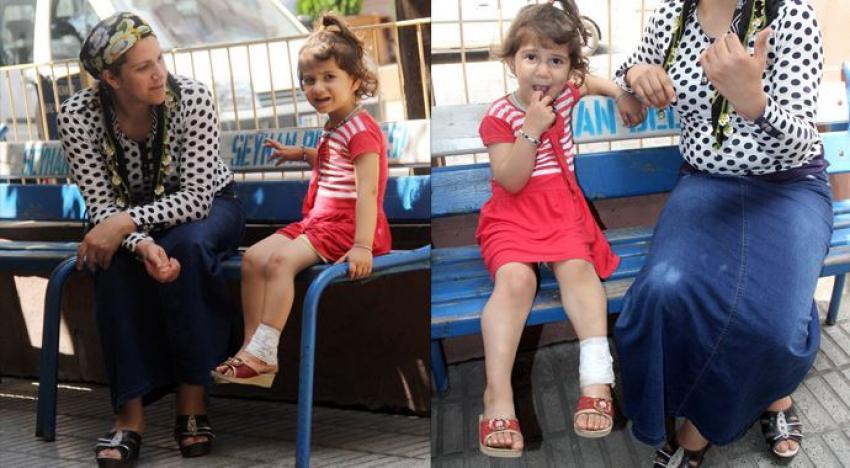 Molotof 3 yaşındaki kızın ayağına geldi!