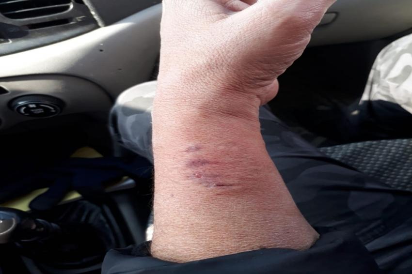 Polis memurunun kolunu ısıran HDP'li vekile soruşturma