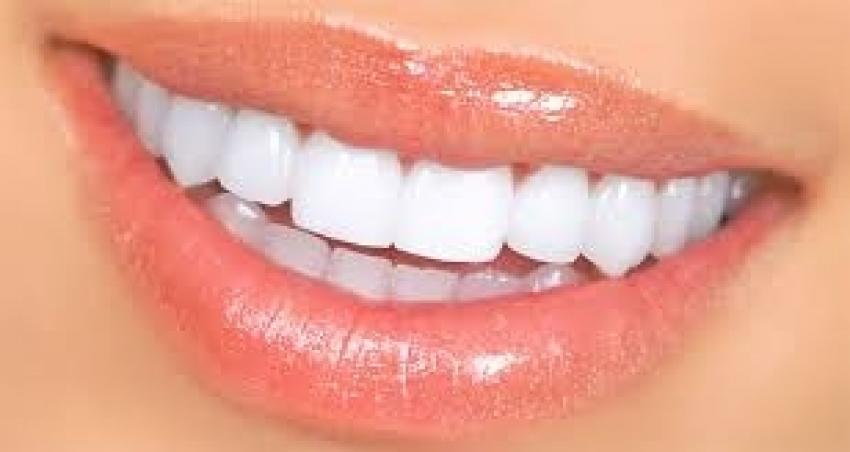 Ramazan ayında diş çürüklerine dikkat