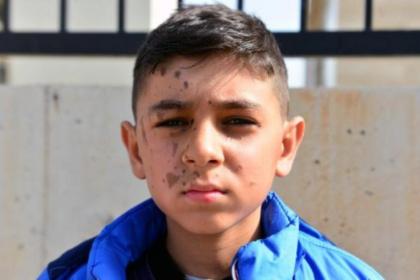 11 yaşındaki Yiğit Ali Yılmaz'ın yüzü yandı