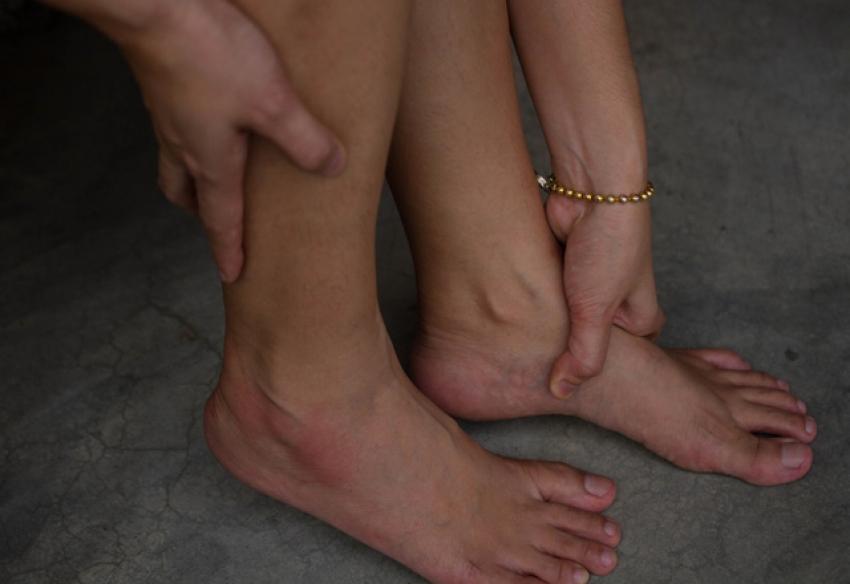Ayak şişkinliğini ne alır?