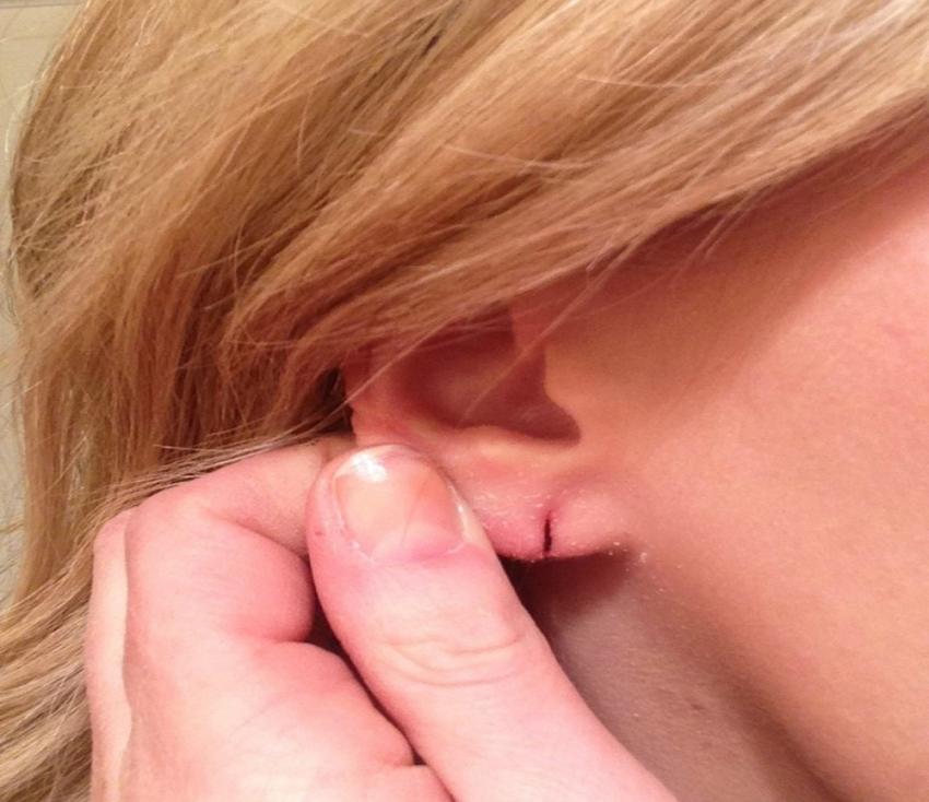"""""""Piercing taktıranlar burnunu, dilini, kulağını kaybedebilir"""""""