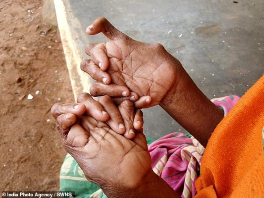 31 parmaklı kadın 'cadı' ilan edildi