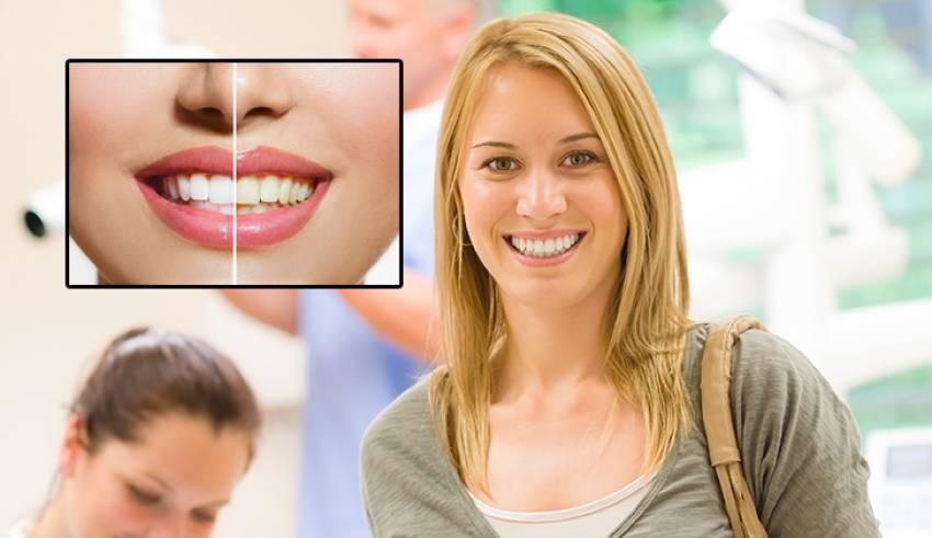 10 soruda diş beyazlatma