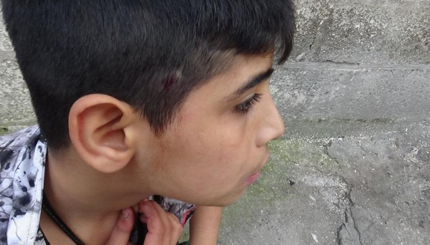 Silahlı kavgada top oynayan çocuk ile birlikte 3 kişi yaralandı