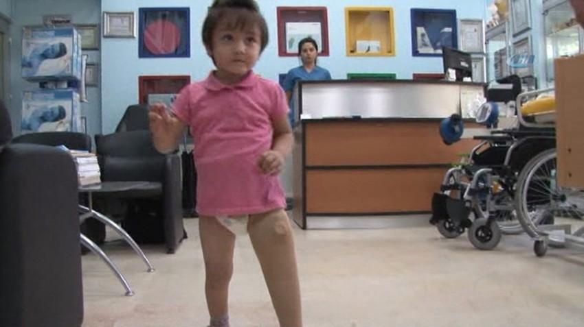 Minik Özge yeni protezine kavuştu