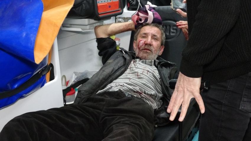 Bursa'da engelli kardeşini bıçaklayıp başında sigara içti