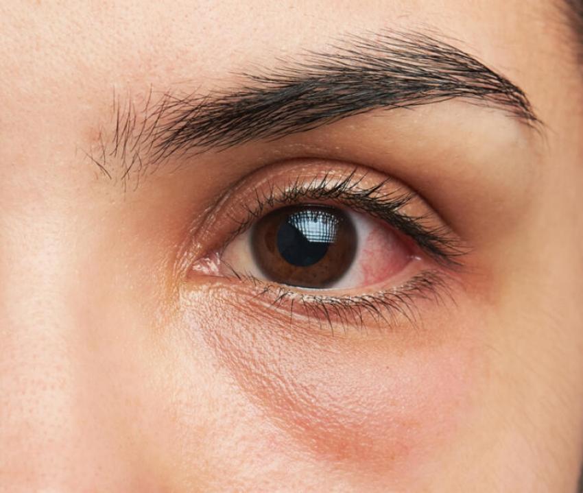 Gözdeki sinsi hastalık…
