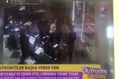 Hakan Yılmaz ve eşinin otelde uğradığı saldırının görüntüleri