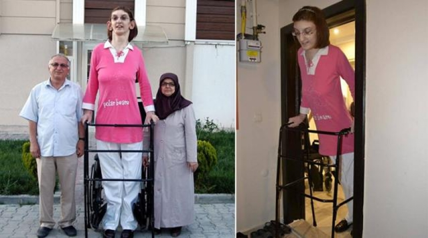 """""""Dünyanın en uzun boylu kadını"""" unvanıyla Rumeysa Gelgi, Guinness Rekorlar Kitabı'na girdi"""