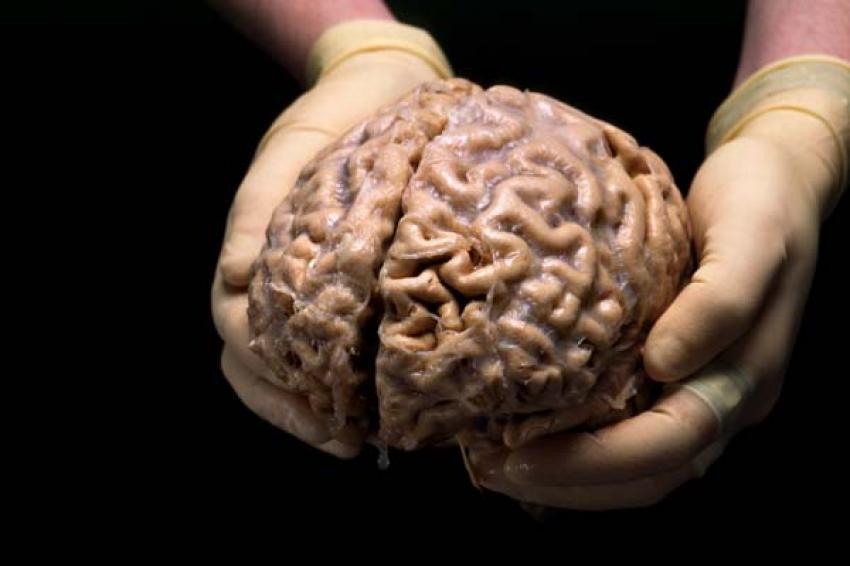 Parkinsonu insan beyni yiyerek yenin