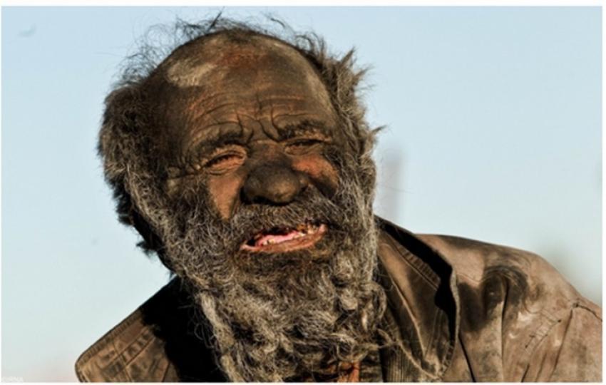60 yıldır yıkanmayan dünyanın en pis adamı!