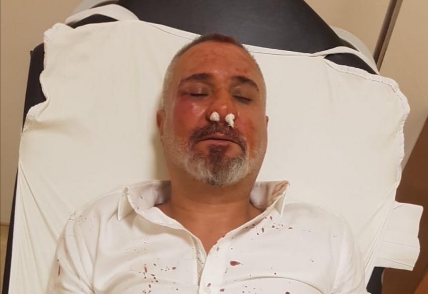 Bgc'den gazeteci Şaban Önen'e  saldırıya kınama