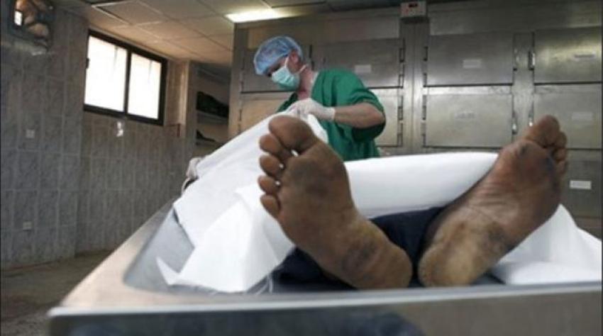 Öldü sanılıp morga kaldırılan adam, otopsi yapılırken uyandı