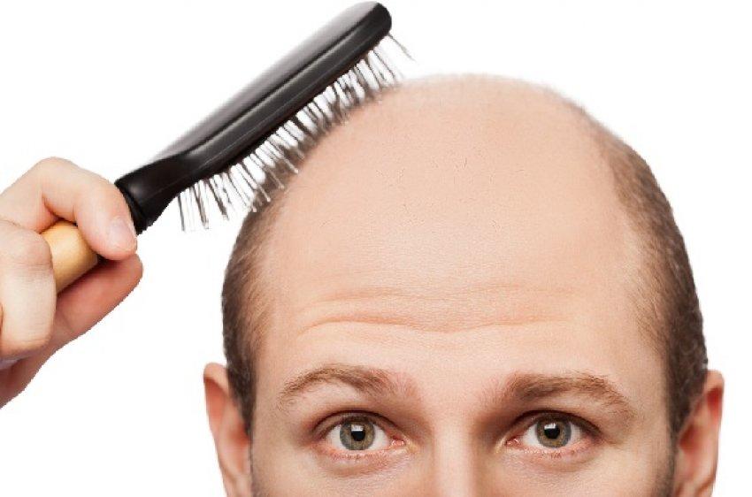 Saç dökülmesine son!