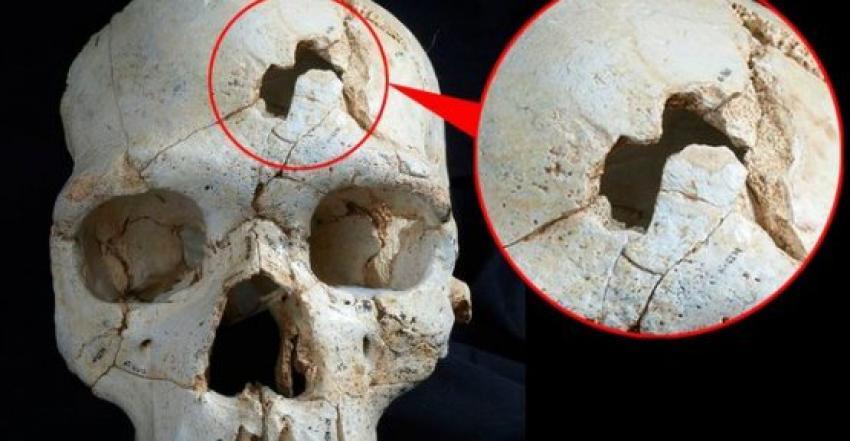 Bu cinayet 430.000 yıl önce işlendi
